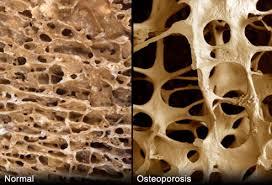 osteoporoza-3